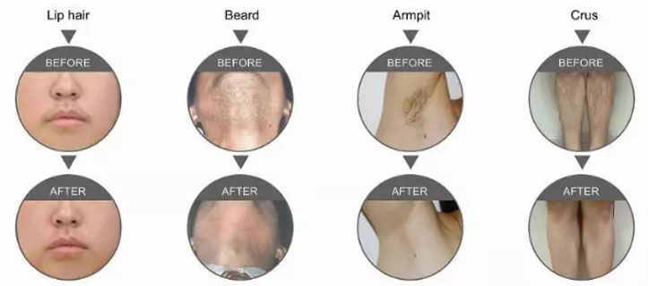 Vertical Permanent Hair Removal 808nm Laser Machine