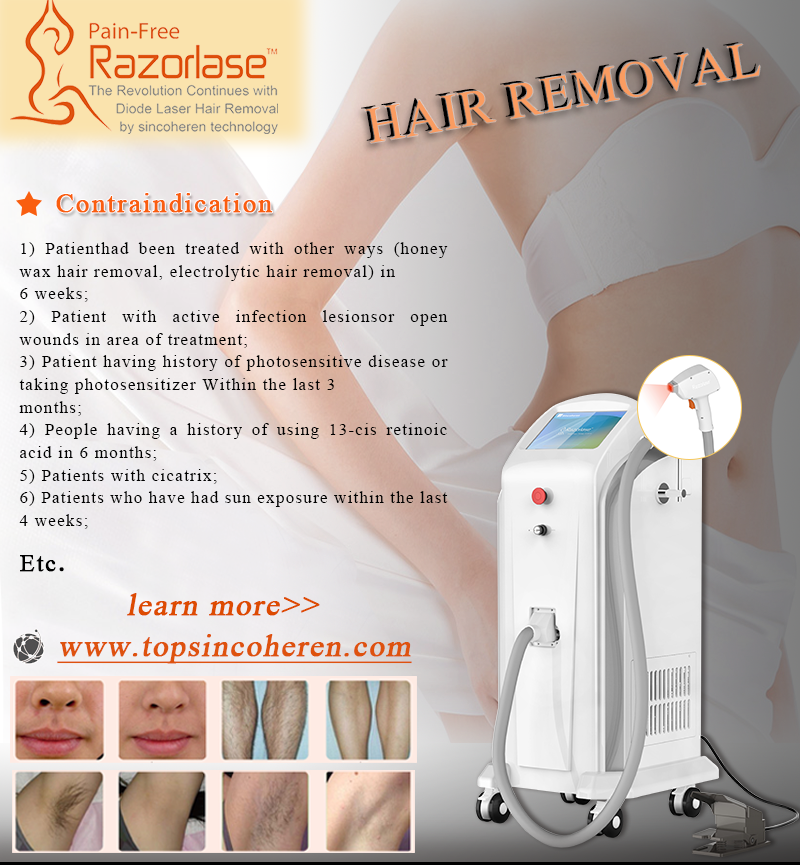 Who is not suitable for laser hair removal?